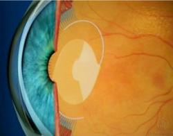 Oftalnova Barcelona soluciones vista cansada lente intraocular