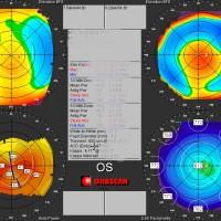 TOPOGRFIA-CORNEAL-ORBSCAN-Prueba-oftalmologia-Oftalnova-Barcelona-2